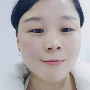 福州双眼皮整形手术