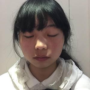 双眼皮让眼睛超大变化
