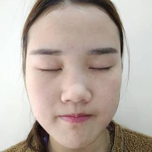 假体隆鼻手术日记