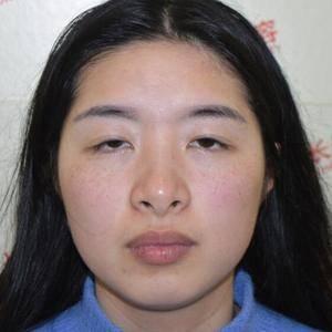 眼部修复术后分享