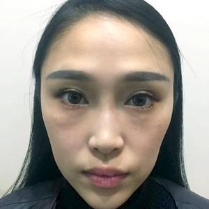玻尿酸注射下巴、玻尿酸注射隆鼻