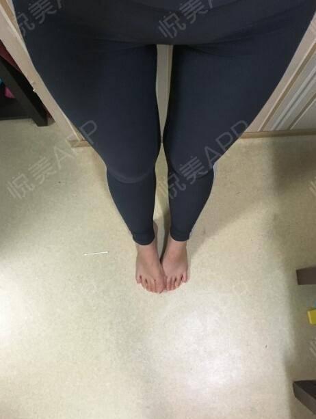 又来跟大家秀美腿了,现在大腿处于稳定期,不会有什么变化,大腿吸脂真的是没有什么副作用。腿围缩小的程度,我也是很满意,穿裤...