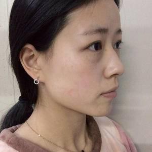 鼻失败修复,玻尿酸注射下巴