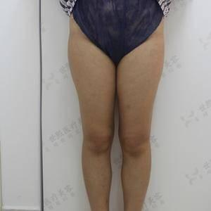 大腿吸脂1