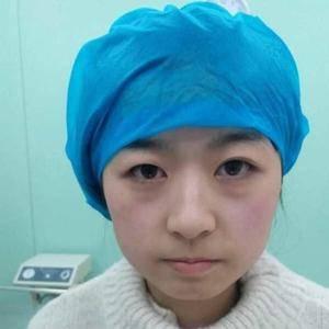 广济芭比双眼皮的蜕变
