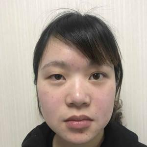 邵玉芳医生 双眼皮手术,做的左眼哦