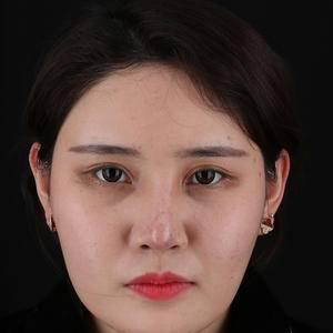 歪鼻修复手术