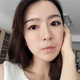 北京京韩自体脂肪填充面部精雕术后一个月,我发现最近的皮肤好像变好了一些,我问医生,医生说做自体脂肪移...