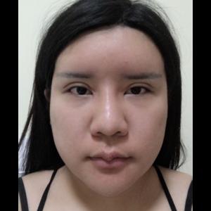 下颌角手术过程中的第一天