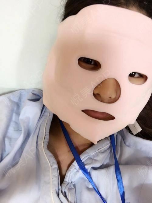 今天是手术之后的第2天。脸还是比较肿,伤口在