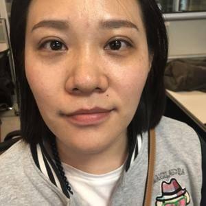 北京英煌鼻部整形