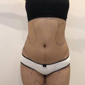 射频吸脂瘦腰