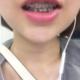【柴亚军主任牙齿矫正第二个月】当初做矫正最重要的目的就是排齐牙齿,没想过调整咬合这些问题,3月份带的...