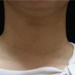 遗传吧,我妈妈也颈纹挺重的,而且玩手机久了,大学就特别明显。现在渐渐的重...