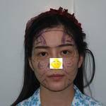 哈喽大家好!今天在北京京韩做了自体脂肪填充全脸,从三年之前就在关注京韩了...