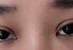 面诊的医生给我制定了双眼皮加开眼角的手术,开的是内眼角,具体开多少还是根...