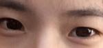终于可以变成双眼皮啦,单眼皮的我,可是一直渴望着双眼皮的美呢。看着那些双...