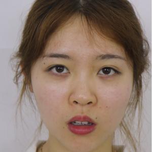 鼻部综合术