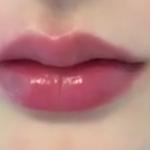 真的是考虑了很久很久,看了很多案例才下定决心去做这个脂肪唇部填充的,在这...