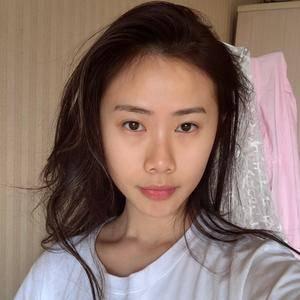 重庆木槿@肋软骨鼻综合术后第1天
