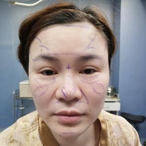 做了一个鼻综合手术