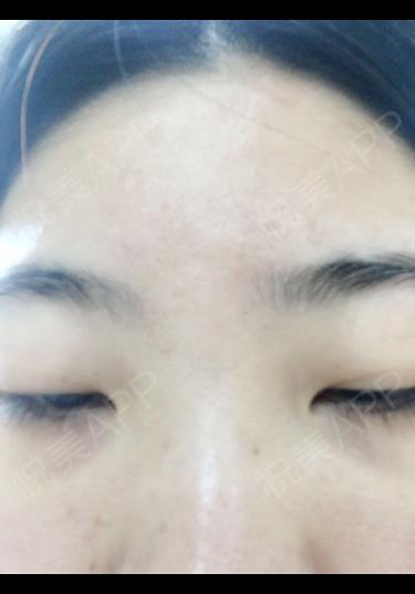 这是微针后第二天,还有一丢丢红,一天用两次面膜,吸收比没做之前快,一定是因为脸上的有针眼,所以渗透性好[偷笑],皮肤其他...