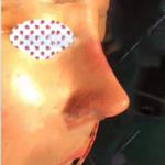 特别喜欢王医生给我做的鼻子,(*^__^*)嘻嘻……