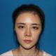 提前两天来到了上海,先面诊体检确定手术方案先得哦,工作人员都很热情体贴哒~我的下颌角属于正面看不是很...
