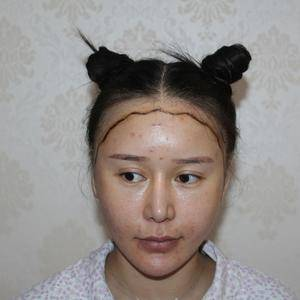 【成都首瑞植发种植发际线手术后第一天