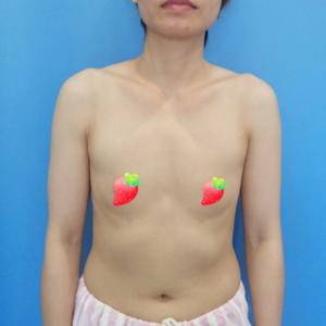 美贝尔假体隆胸