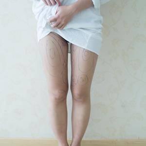 北京艺美医疗美容诊所吸脂瘦大腿。