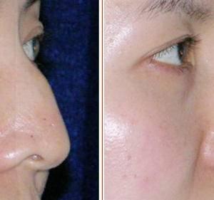 驼峰鼻的矫正方法有哪些?重度和轻度矫正方法不同