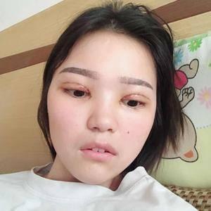 晚fengxia爱到飞起的双眼皮日记术后5天第3页图