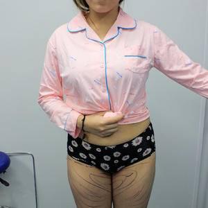 苏州紫馨 大腿环吸+臀部吸脂