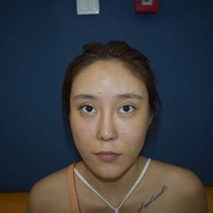 肋软骨隆鼻+面部脂肪填充全脸