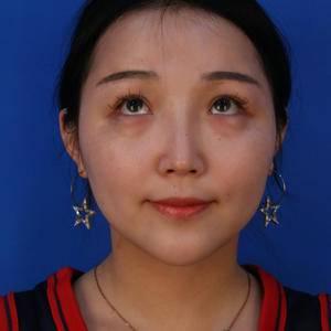 【上海薇琳】去眼袋 换你一双美目