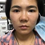 【上海华美王荣锡主任自体脂肪填充】这四张照片是做好第一天。用的自体脂肪填...