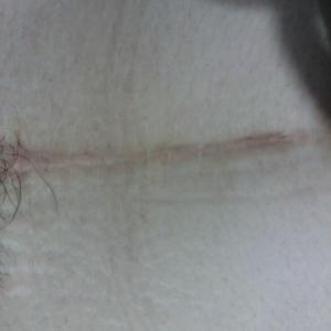 没疤还是挺美得!