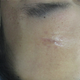 头上伤疤修复案例