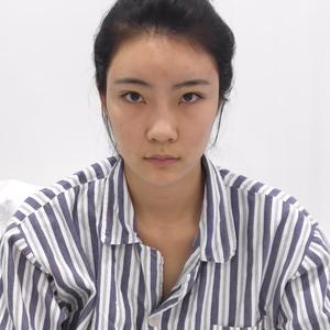 北京炫美.自体肋软骨隆鼻