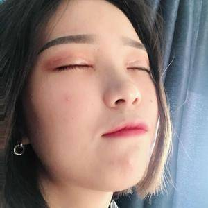 晚fengxia爱到飞起的双眼皮日记术后52天第2页图