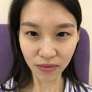 鼻综合 眼综合 自体脂肪丰脸