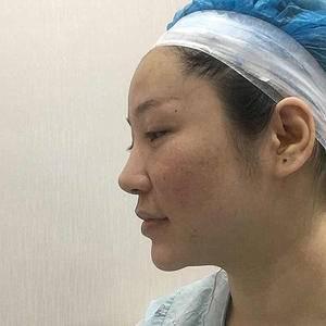 肋软骨鼻修复