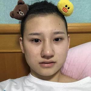 万家燕医院面部吸脂瘦脸