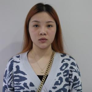 日记本:双眼皮手术后