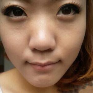 昆明鼻综合+鼻翼缩小