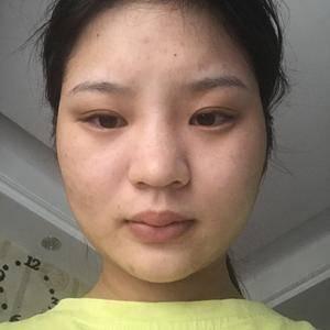 五维度微创隆鼻