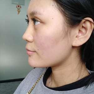 鼻综合,一个部位改变一张脸