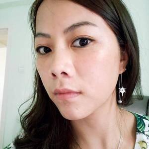 深圳健丽线雕隆鼻术