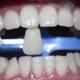 想要阳光灿烂的笑容就必须拥有一口洁白整齐的大白牙于是便尝试了一下冷光美白效果是立竿见影的做的过程中会有一点酸酸的感觉...
